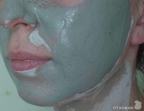 Себорея лица маска