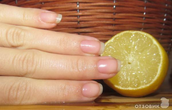 Чем укреплять ногти в домашних условиях йодом 731