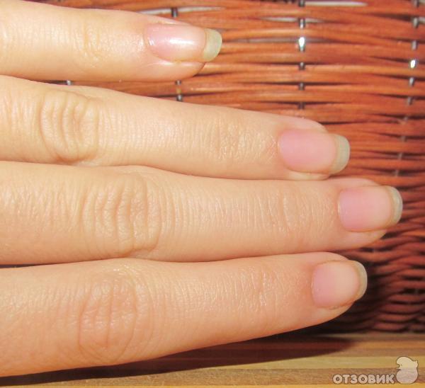 Чем ускорить рост ногтей в домашних условиях 974