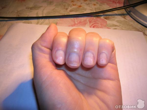 При грибке ногтей можно делать шеллак