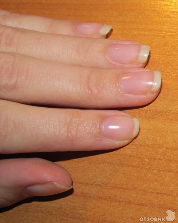 Что делать если ногти не растут в домашних условиях 217