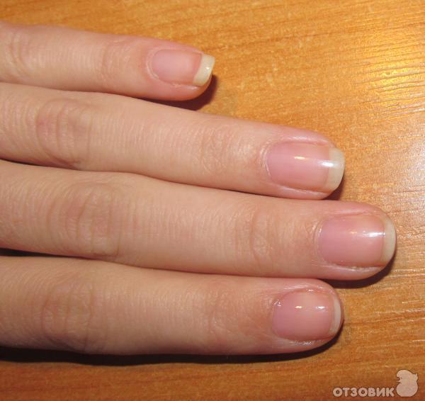 Как укрепить ногти и их рост в  324
