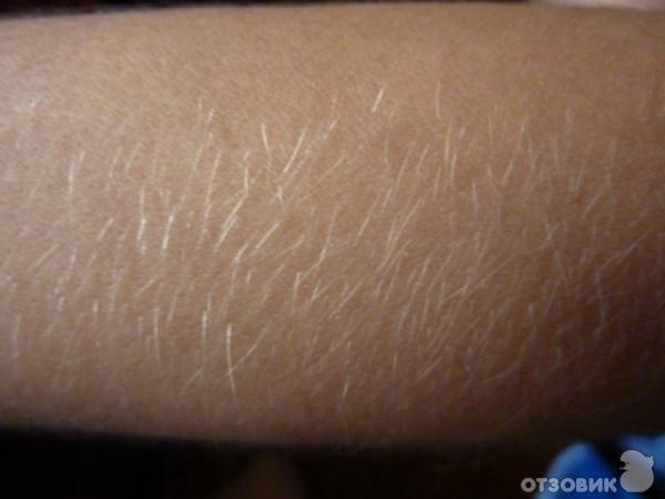 Удаление волос навсегда